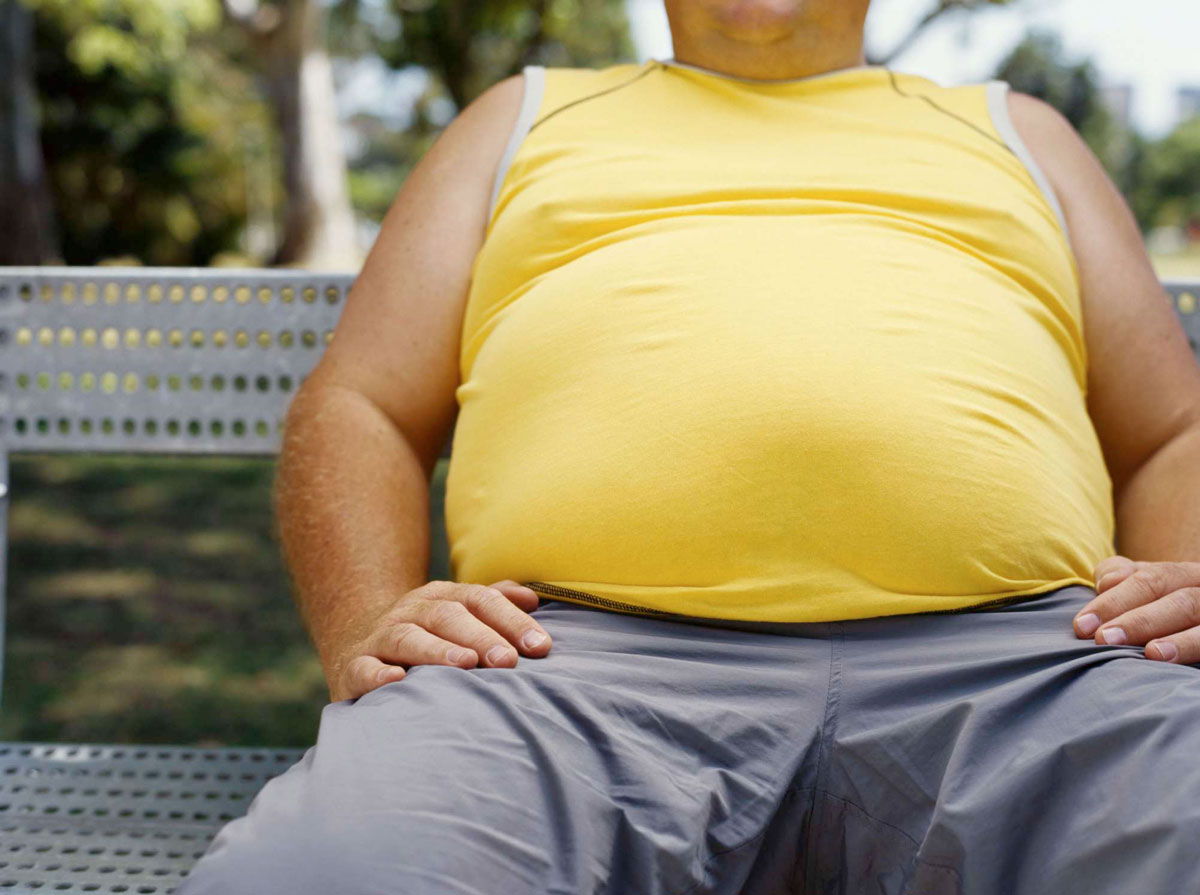 obesite épidémie