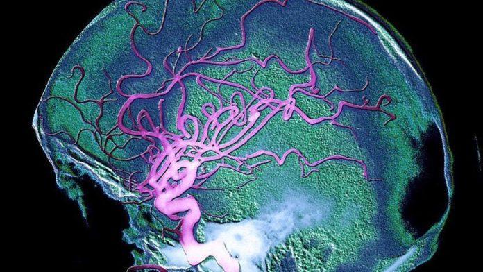 cerveau Alzheimer
